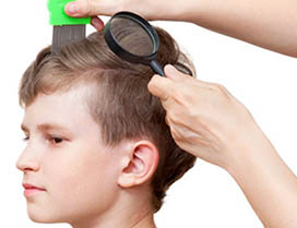 signs of head lice